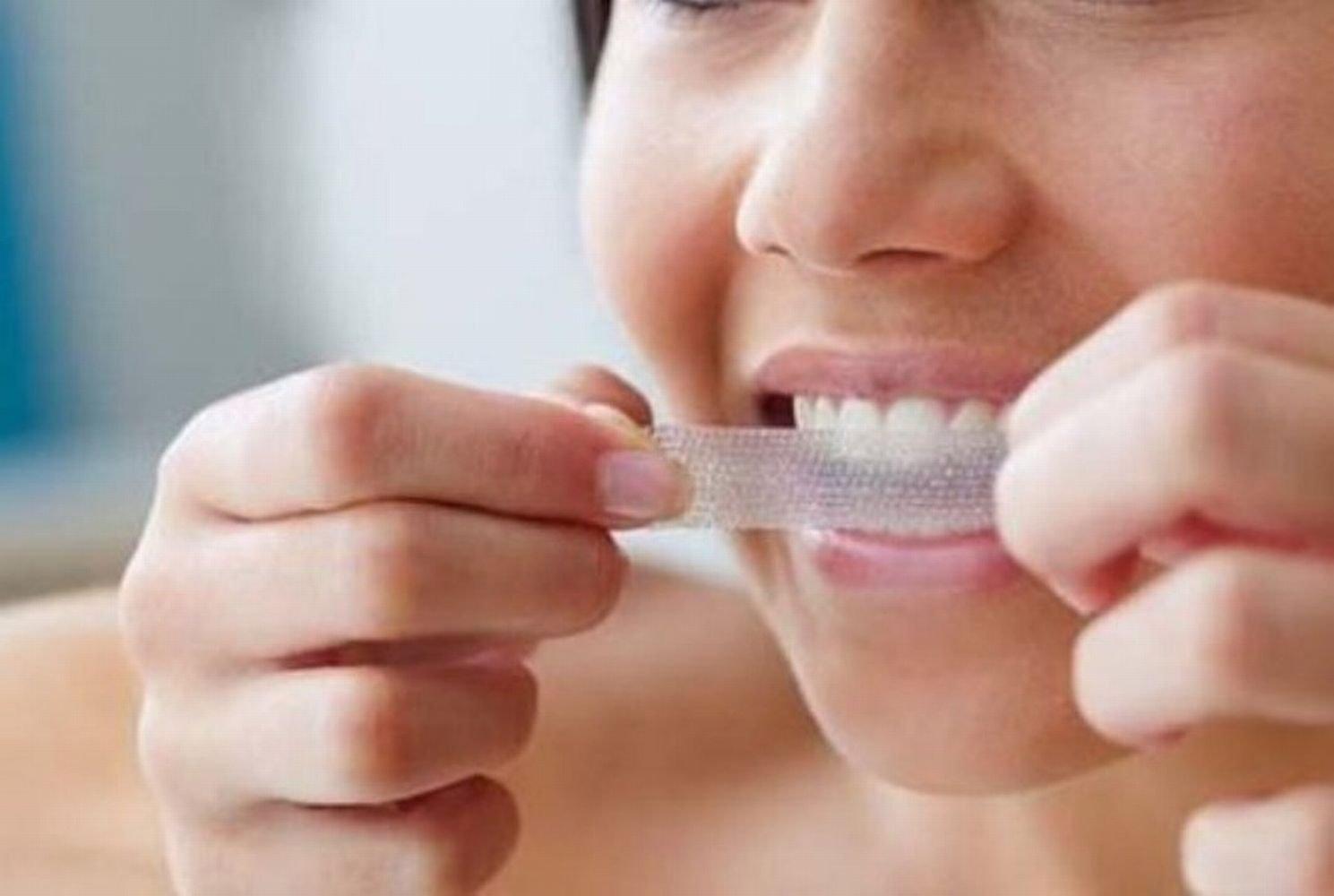 oare-se-pot-albi-dintii-acasa