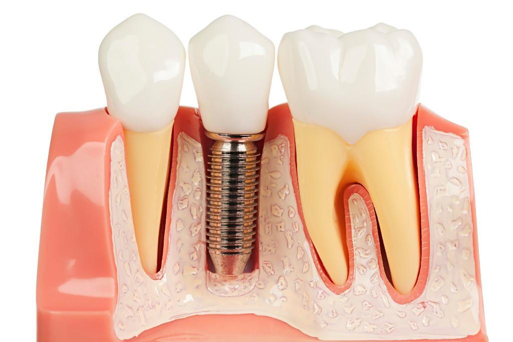 Avantajele tratamentului implantului