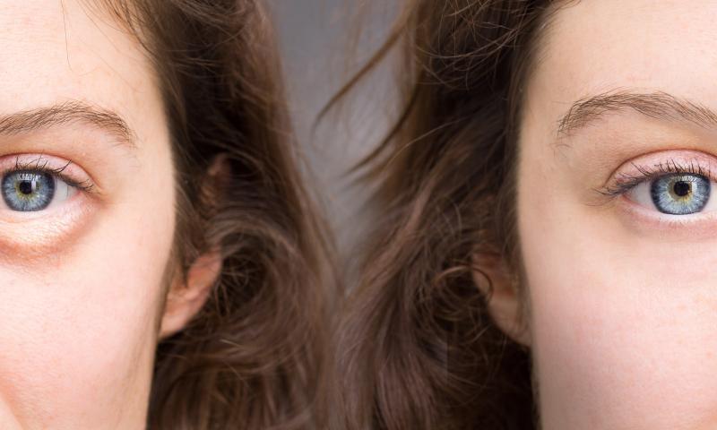 Cum se pot elimina pungile inestetice de sub ochi?