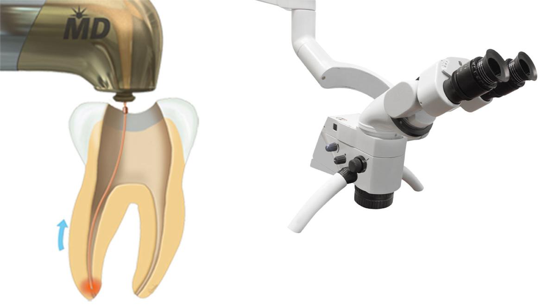 Care este tratamentul canalului radicular la microscop?